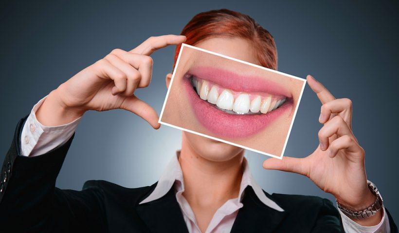 fluor-en-los-dientes